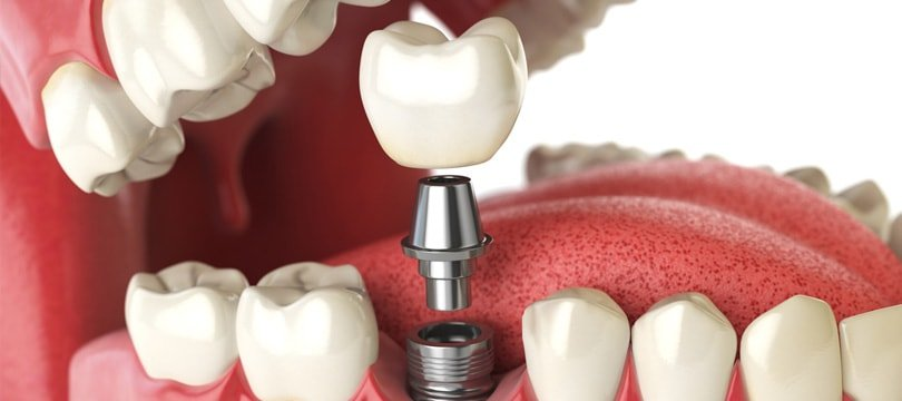 how-dental-implants-affect-teeth-min