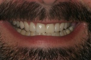 Eric S. Smile After Porcelain Veneers