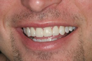 JF Smile After Porcelain Veneers