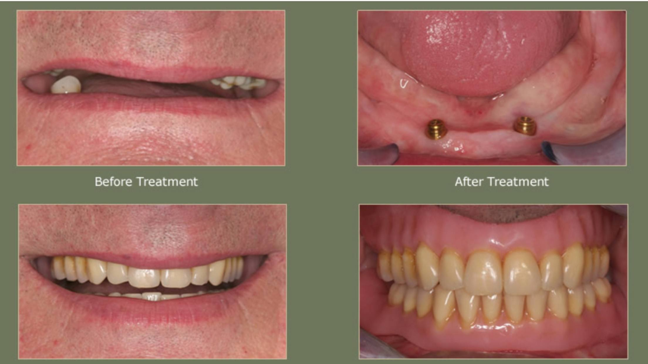 Examples of Dentures