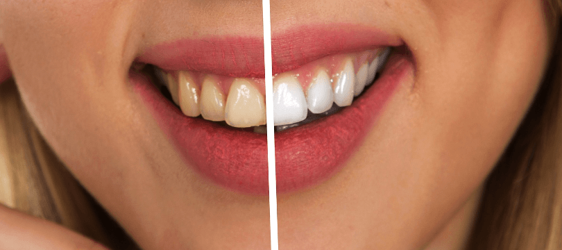 What-Teeth-Whitening