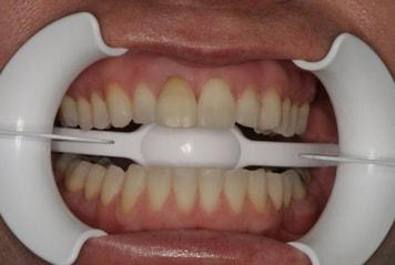 teeth-w01-1-min