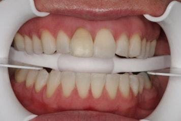 teeth-w01-2-min
