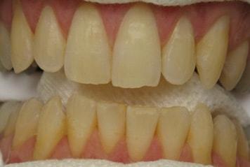teeth-w02-1-min