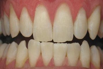 teeth-w02-2-min