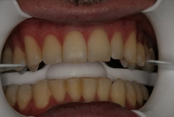 teeth-w03-1-min